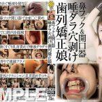 鼻フック&開口器 唾ダラ穴剥け歯列矯正娘 グリップAV GRAV-073 リョウコ
