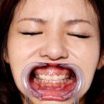 歯12 フェチ映像屋 FJD-0035 こずえまき
