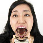 銀歯フェチ歯観察 由香里さんの口内 フェチ映像屋 FJD-0884 酒井由香里